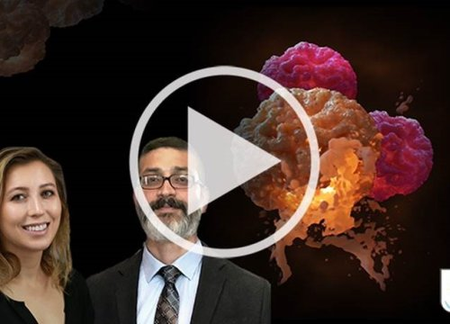 Targeting glioblastoma: Assessing the potency of T cells to kill cancer